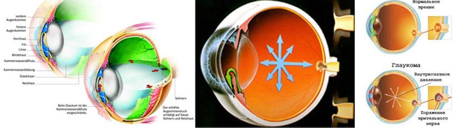 Лечение глаукомы днепропетровск